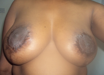 breasts after breast reduction